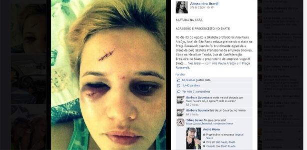 Ana Paula Araújo mostra ferimentos no rosto após ser agredida na praça Roosevelt.