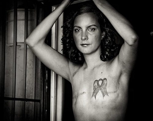 "Foto de David Jay, 2011. Parte do projeto fotográfico ""The Scar Project""."